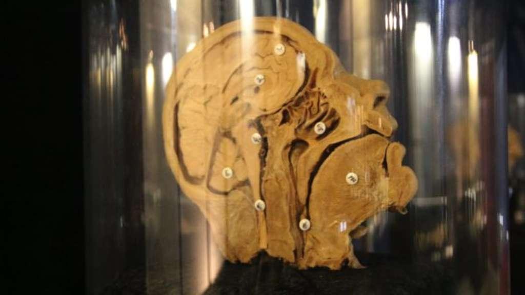 Tiefe Einblicke: Anatomie-Ausstellung zeigt menschlichen Körper | Kassel